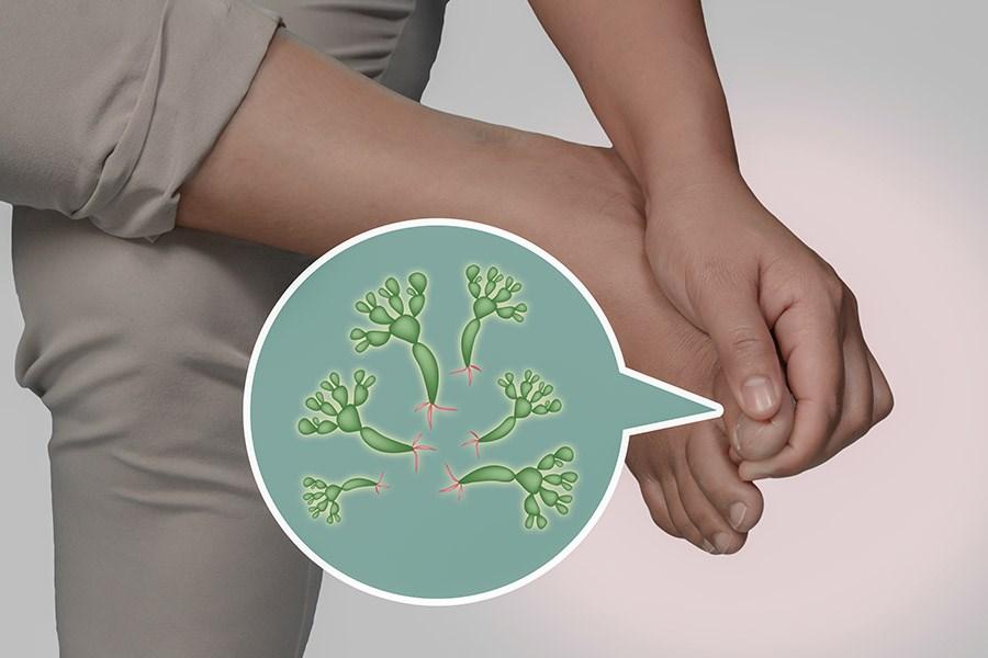 Yüzeysel Mantar Enfeksiyonları Nelerdir ?